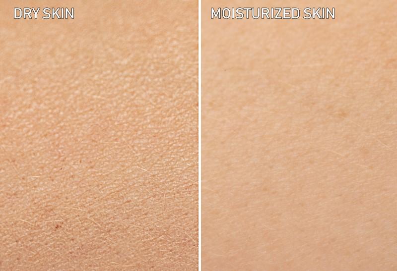 comparação entre pele seca e hidratada