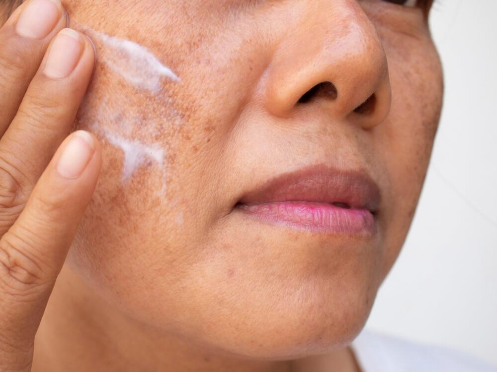 Close no rosto de uma mulher. Ela está passando protetor solar facial em manchas.